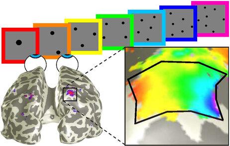 brain scans(1)