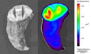 The image on the left is a piece of lung tissue that contains a tumor viewed under normal white light. The right image shows the same piece of tissue after Tumor Paint has been applied. Here it's viewed under infrared light. Areas that are more red and yellow show a concentration of the paint, which means they are more likely to be cancerous.