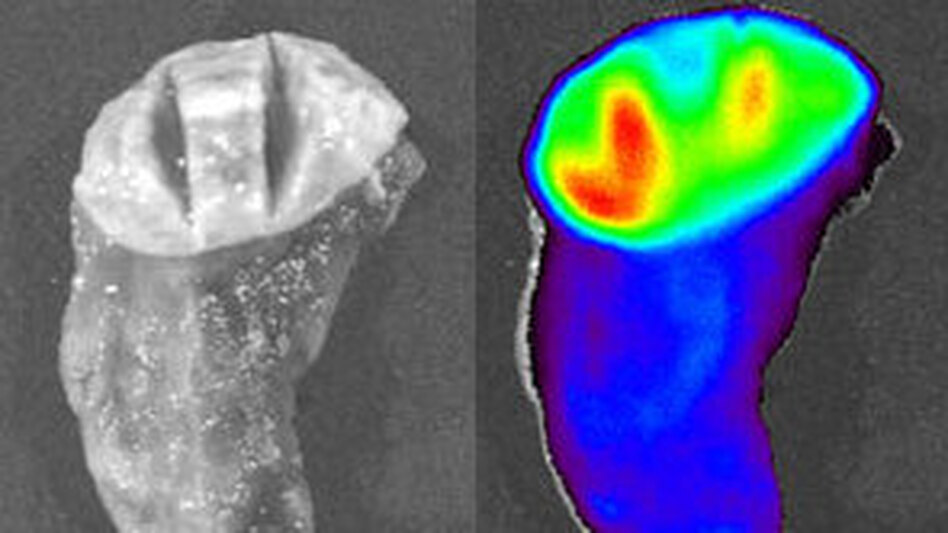 The image on the left is a piece of lung tissue that contains a tumor viewed under normal white light. The right image shows the same piece of tissue after Tumor Paint has been applied. Here it's viewed under infrared light. Areas that are more red and yellow show a concentration of the paint, which means they are more likely to be cancerous. (Blaze Bioscience)