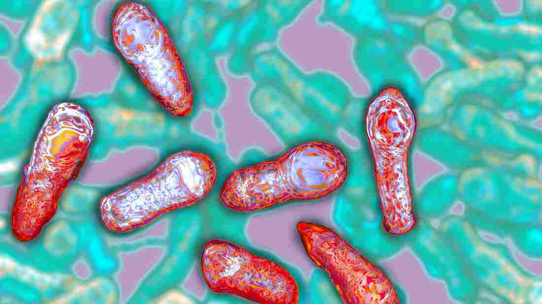 The botulism toxin comes from Clostridium botulinum bacteria, seen here in a colorized micrograph.
