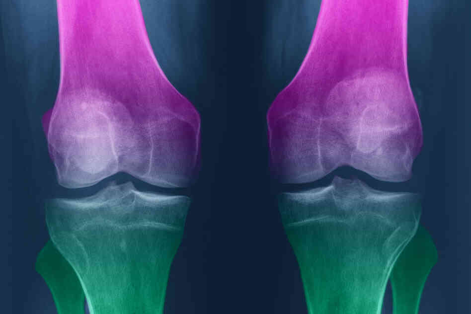 With osteoarthritis, knees become swollen and stiff, and cartilage can degenerate.