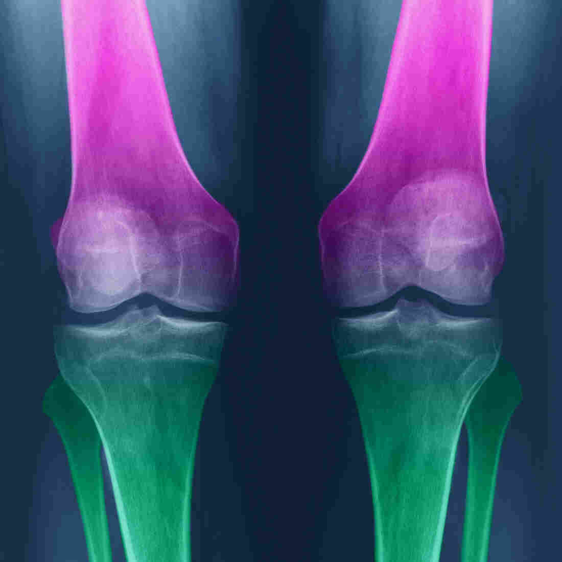 Exercise May Help Knees More Than Glucosamine And Chondroitin