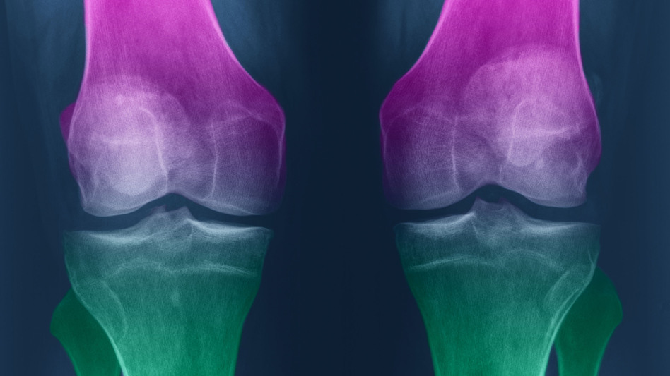 With osteoarthritis, knees become swollen and stiff, and cartilage can degenerate. (Science Source)