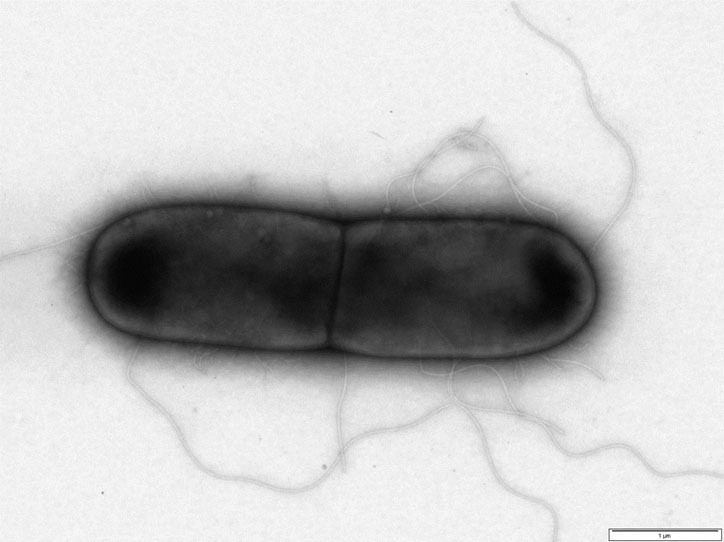 Why Scientists Are Trying Viruses To Beat Back Bacteria
