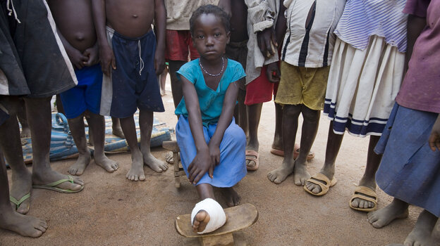 Hawah Alhassan, 5, contracted Guinea worm in a village near Tamale, Ghana, in 2007. The country eliminated the parasite in 2011.