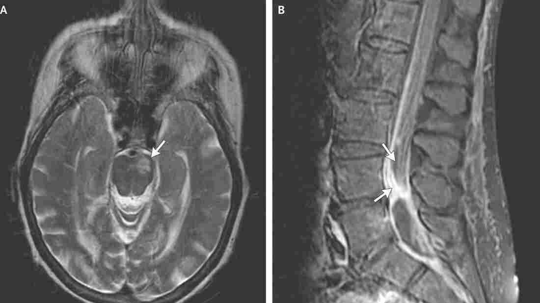 Scans from patients with fungal meningitis show evidence of a stroke (left) and arachnoiditis.