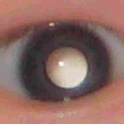 A milky eye can be a sign of early cancer of the retina.