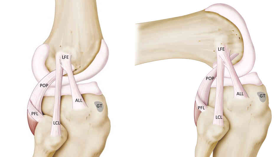 An anatomical drawing shows the ligaments on the outside surface of the knee. The anterolateral ligament connects the thigh bone to the shinbone.