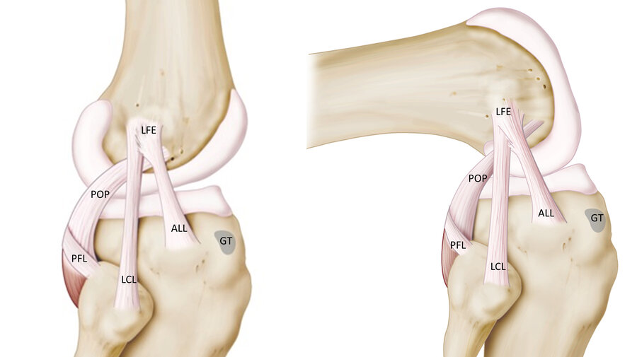 Surgeons Discover Quirky Knee Ligament All Over Again Shots