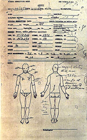 Exhibit 1, from Kennedy's autopsy report, is the bloodstained document Dr. James Joseph Humes did not destroy.