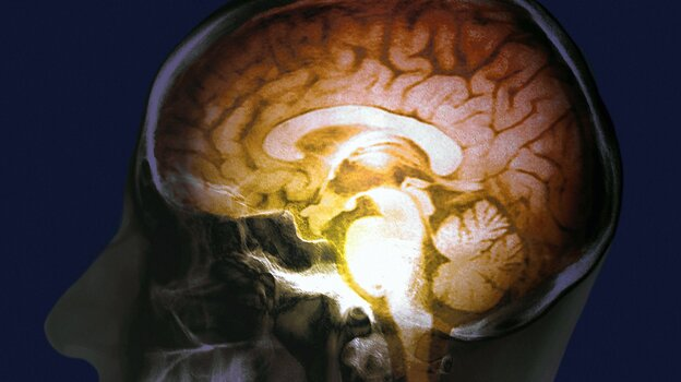 President Obama has pledged millions of dollars to fuel research into understanding the workings of the human brain.