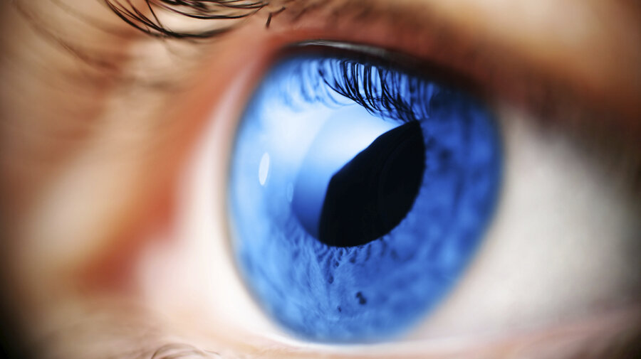 using birth control pills may increase women's glaucoma risk, Skeleton