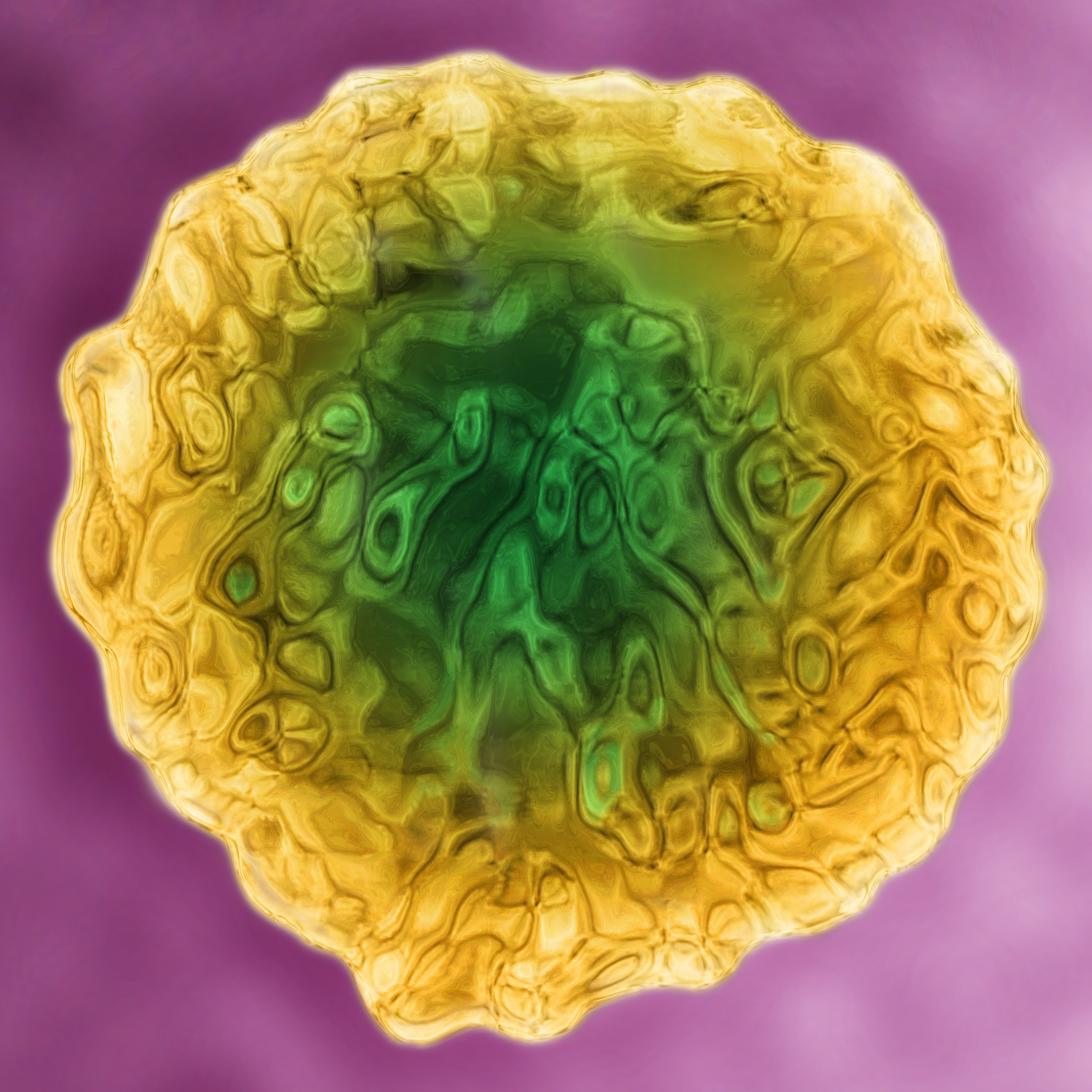 A colorized closeup of the hepatitis C virus.