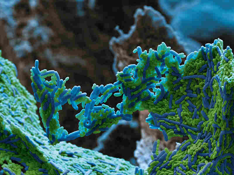Dental public enemy no. 1: Streptococcus mutans is the bacteria that dissolve tooth enamel and cause cavities.