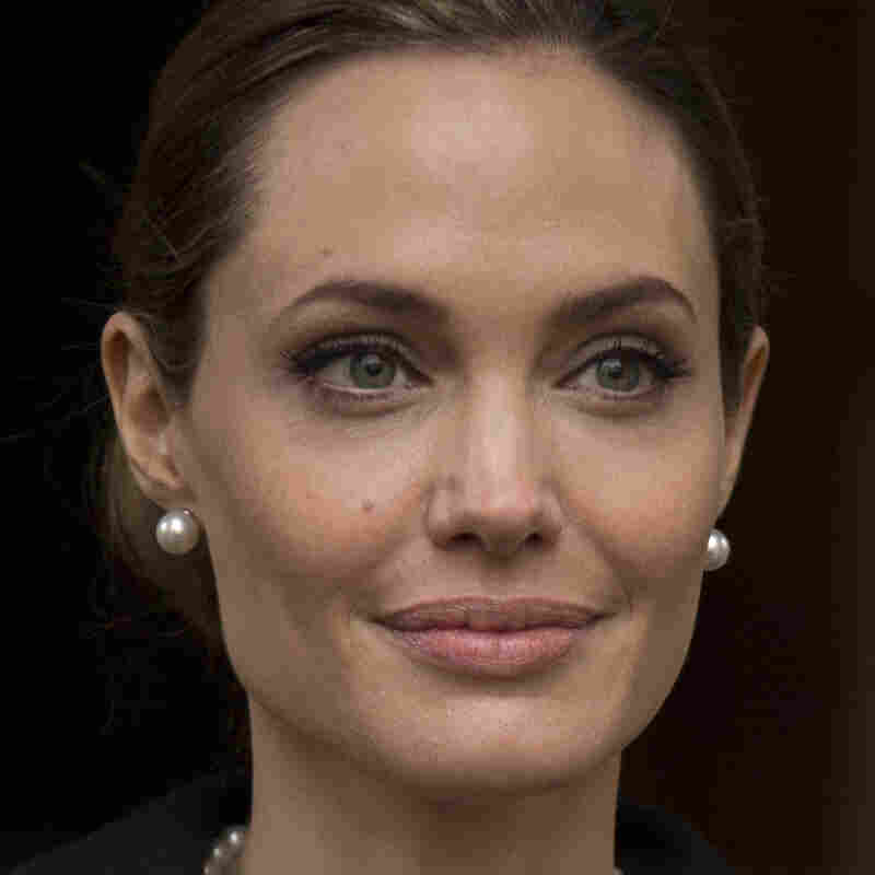 After genetic testing revealed a heightened risk for breast cancer, Angelina Jolie had a precautionary double mastectomy.