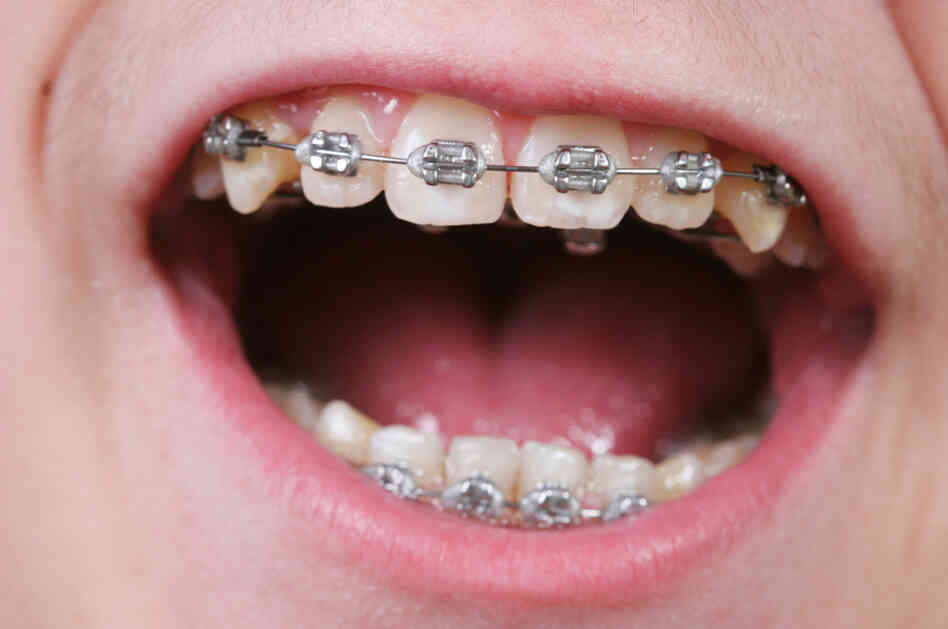 Hey, Mom, can I get braces like that guy?