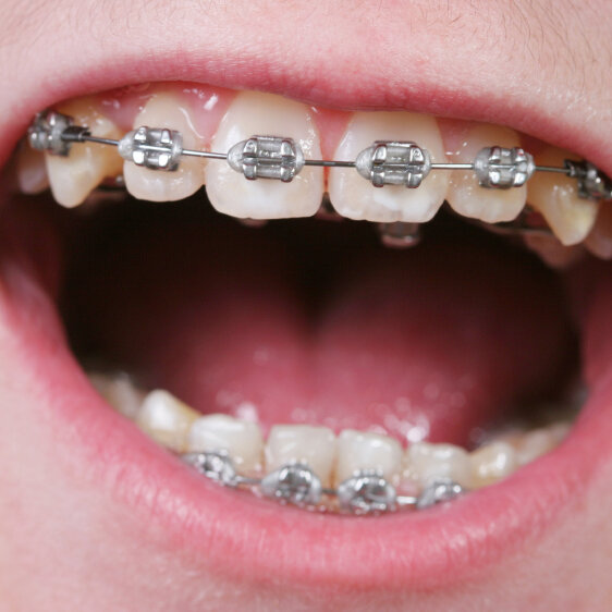 Legal Loopholes Leave Some Kids Without Dental Insurance