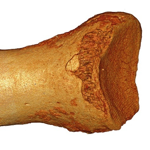 DNA from this ancient toe bone, discovered in a cave in Siberia, was traced to Neanderthals and at least one other newly identified group of early hominids -- the Denisovans.
