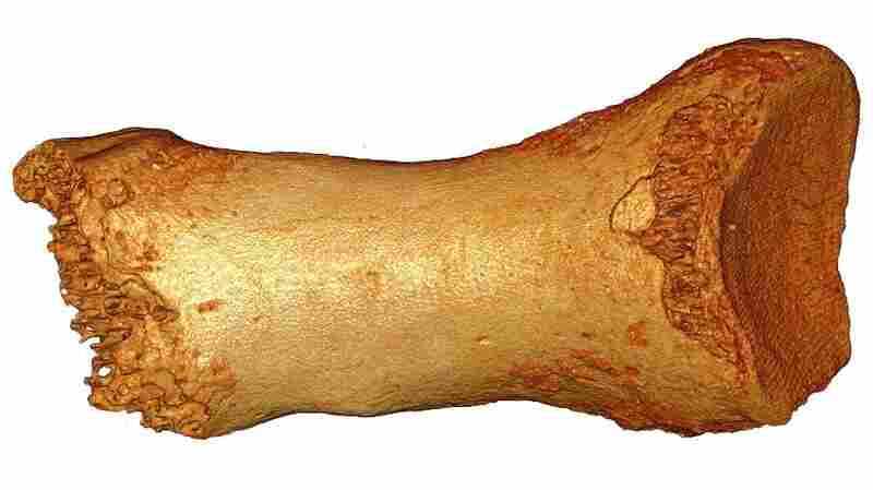 DNA from this ancient toe bone, discovered in a cave in Siberia, was traced to Neanderthals and at least one other newly identified group of early hominids — the Denisovans.