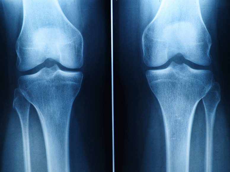 how to build cartilage in knee