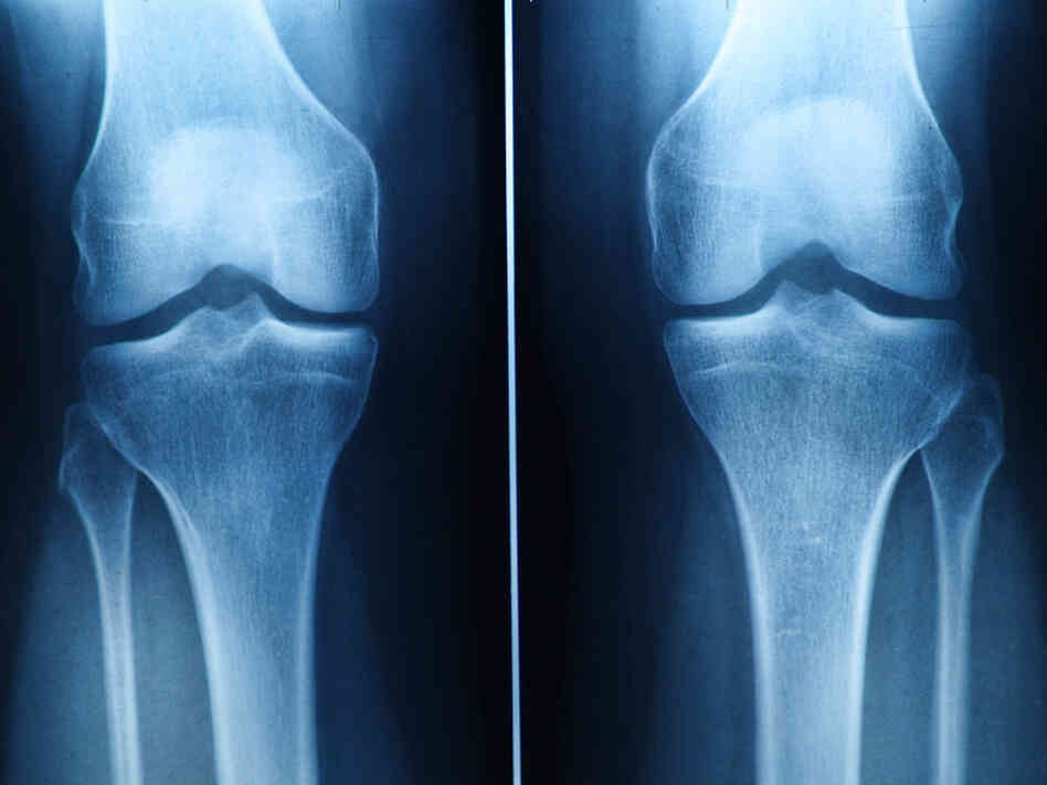 Knee pain is common, but surgery isn't necessarily the answer, researchers say.