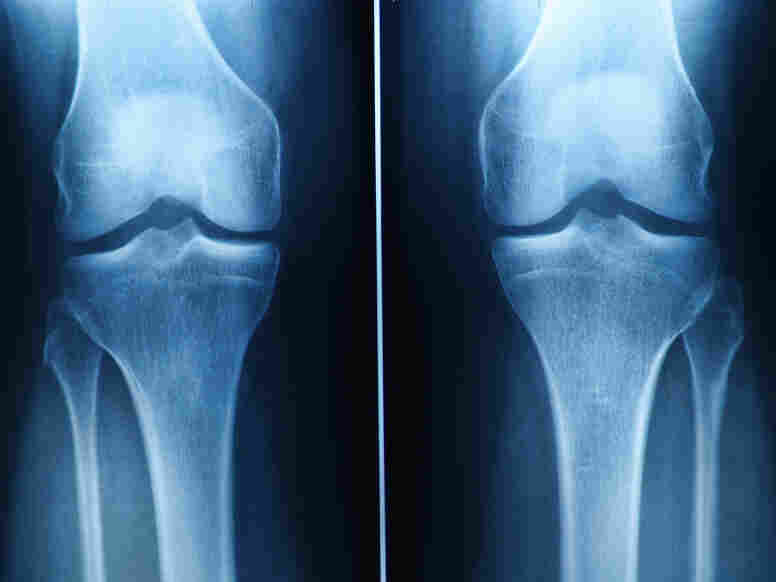 Knee pain is common, but surgery