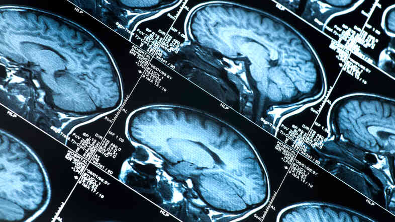Researchers have only recently been able to use brain scans to detect Alzheimer's risk factors in living people.