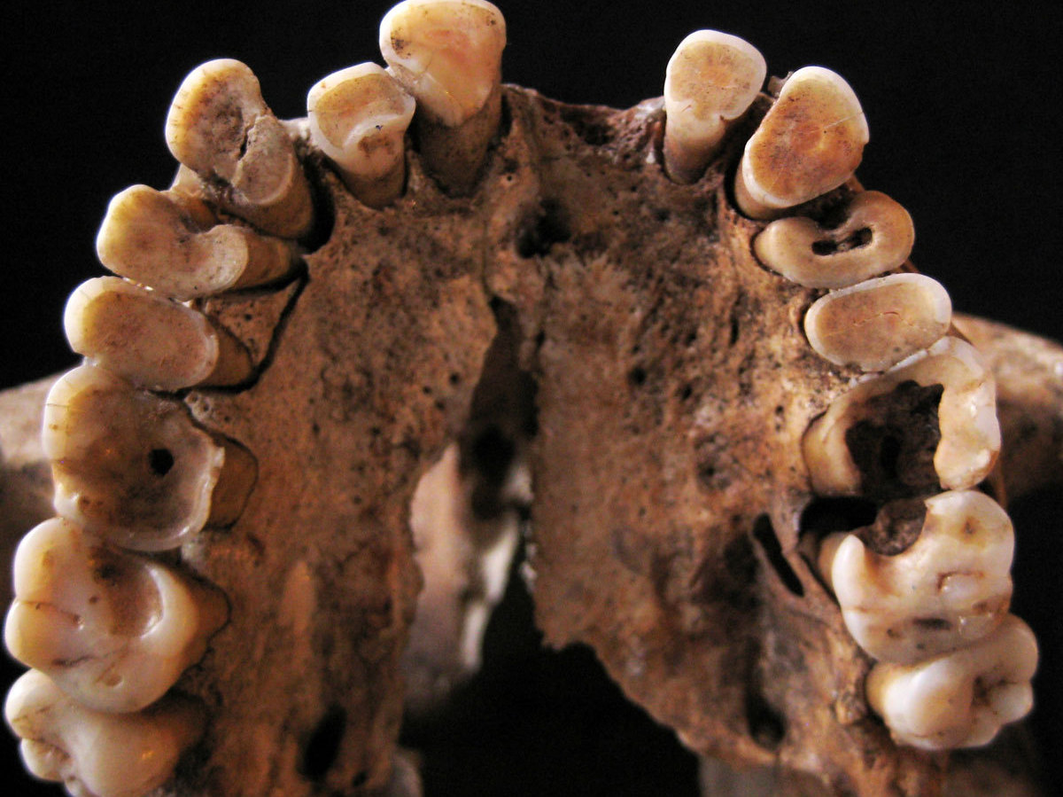 Looks Like The Paleo Diet Wasn't Always So Hot For Ancient Teeth