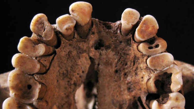 Say aaaaaah! Dental caries and other signs of oral disease are plain to see in the upper teeth of this hunter-gatherer, between 14,000 and 15,000 years old. The findings challenge the idea that the original paleo diet was inherently healthy, says paleo-anthropologist Louise Humphrey. It all depended, she says, on what wild foods were available.