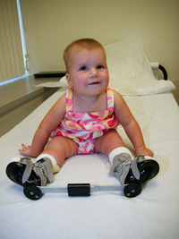 In 2008, Alice showed off the brace she wore at night to keep her feet from turning in.