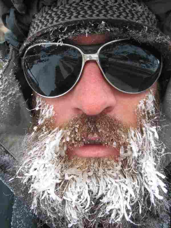 Man with icy beard.