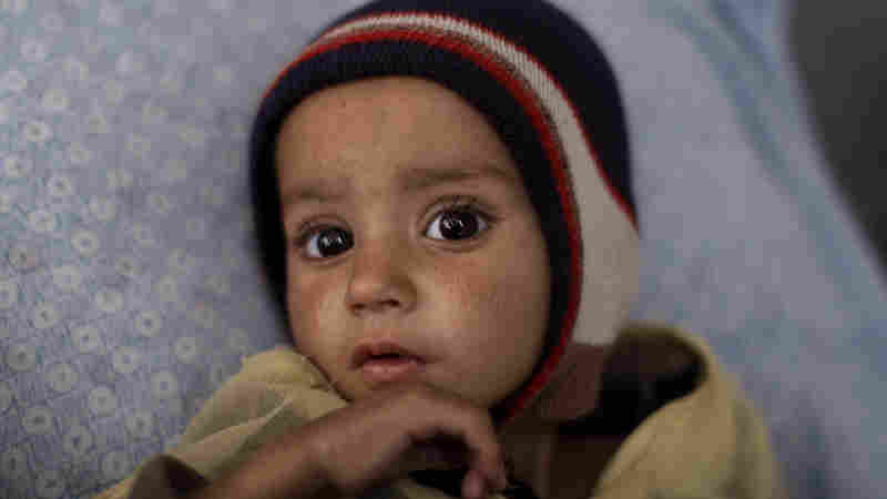 Eid Mohammed who suffers from from chronic malnutrition, lies on a bed at Indira Gandhi Children's Hospital, in Kabul, Afghanistan in 2011. In 2001, one of every four children born in Afghanistan died by the age of five. Today, one in 10 children dies by age 5.