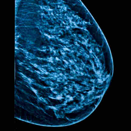 Latest Evidence Against Mammograms Adds To Women's Uncertainty