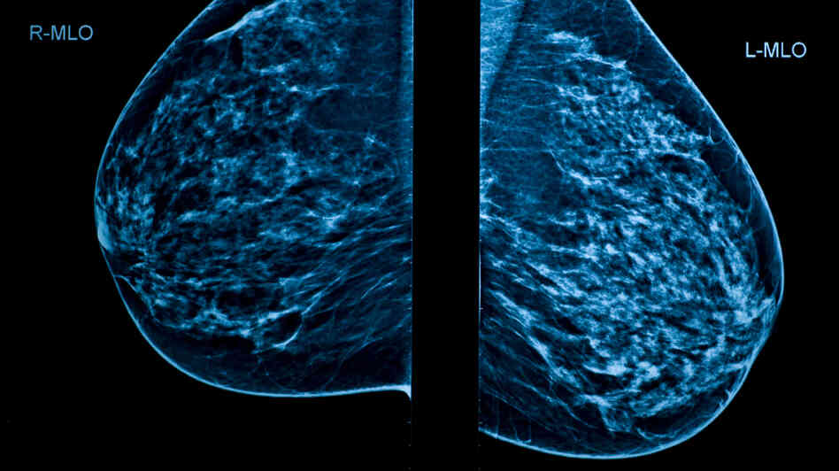 Mammograms are a key screening tool for breast cancer. But critics say they're not good enough.
