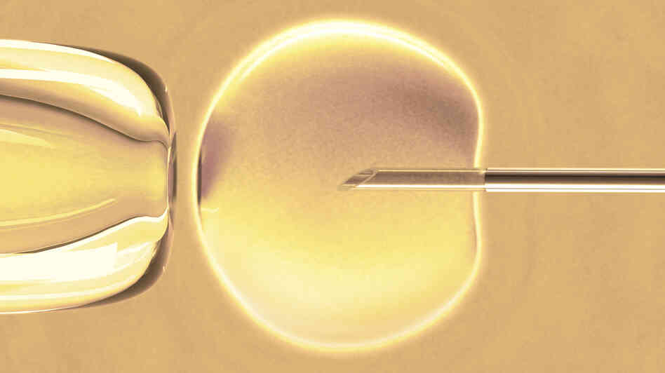 Sperm are placed inside the egg with a needle during a fertility treatment called intracytoplasmic sperm injection.