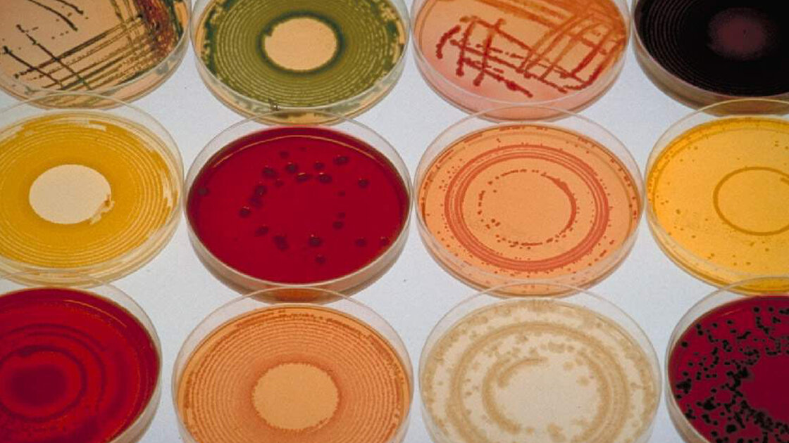 In some human diseases, the wrong mix of bacteria seems to be the trouble.