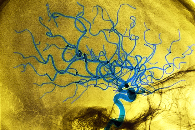 The rupture of a weakened portion of blood vessel (the dark blue spot in this brain scan of a 68-year-old woman) can prompt bleeding and death of brain tissue — a stroke.