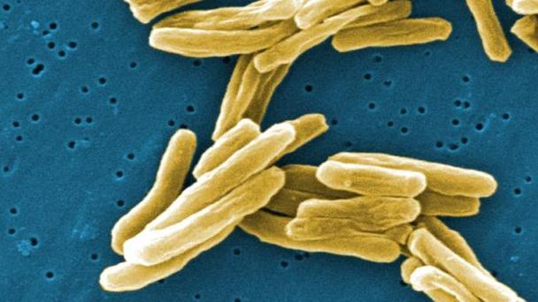 Screening Immigrants For TB Pays Dividends In U.S.