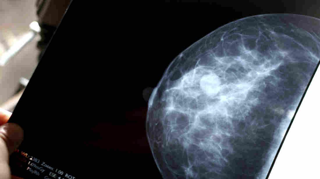 A mammogram.