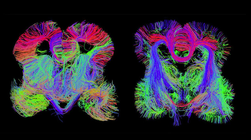 Brain Tissue Reveals More Genetic Clues >> Map Of The Developing Human Brain Shows Where Problems Begin Shots