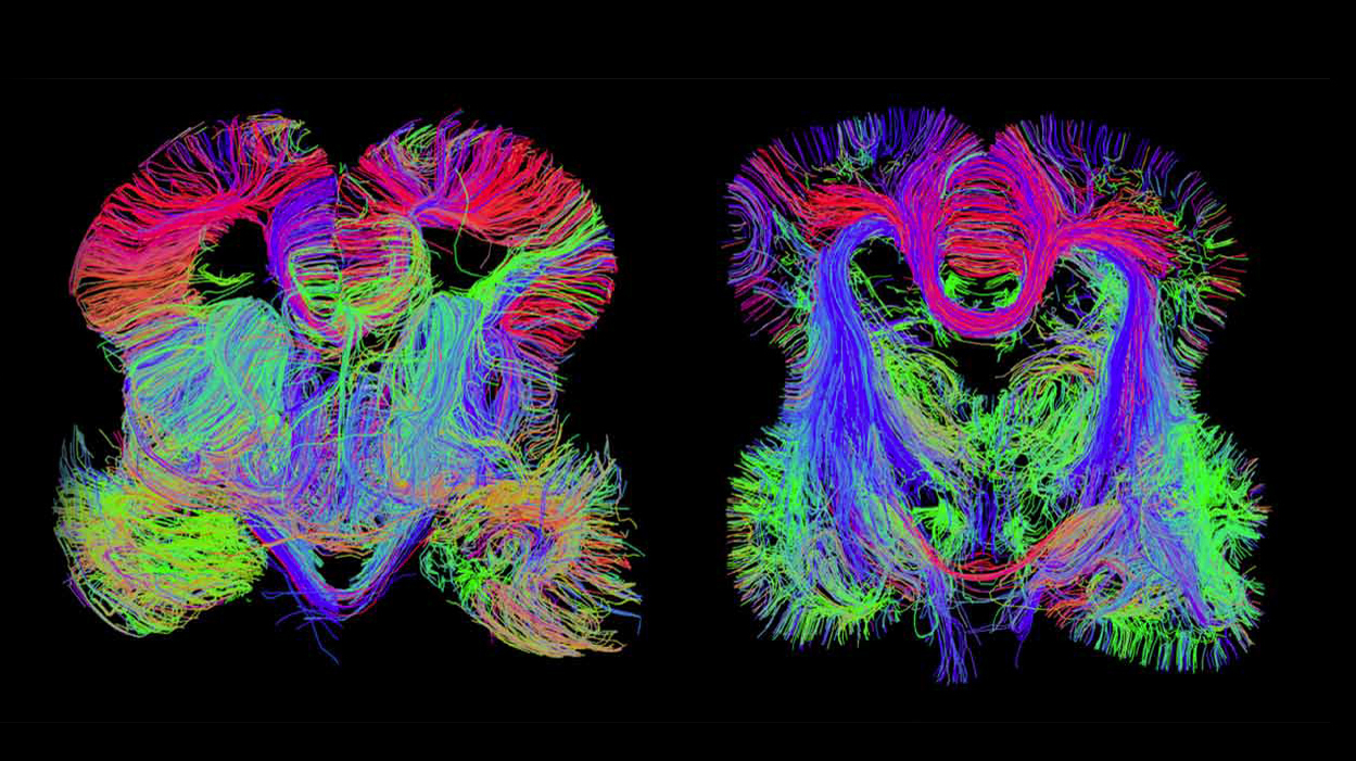 Map Of The Developing Human Brain Shows Where Problems Begin
