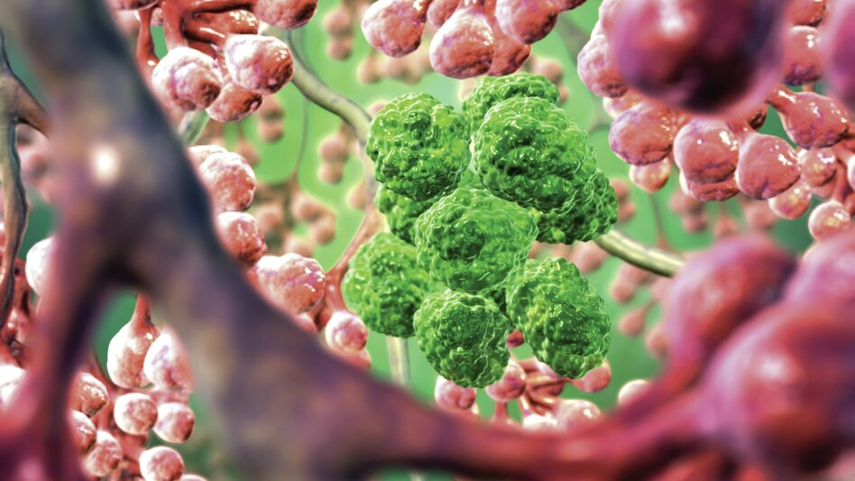 An artist's illustration shows lung cancer cells lurking among healthy air sacs.