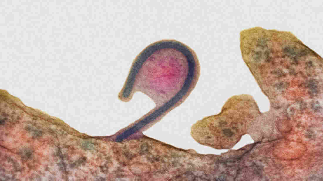 In this colored transmission electron micrograph, an infected cell (reddish brown) releases a single Ebola virus (the blue hook). As it exits, the virus takes along part of the host cell's membrane (pink, center), too. That deters the host's immune defenses from recognizing the virus as foreign.