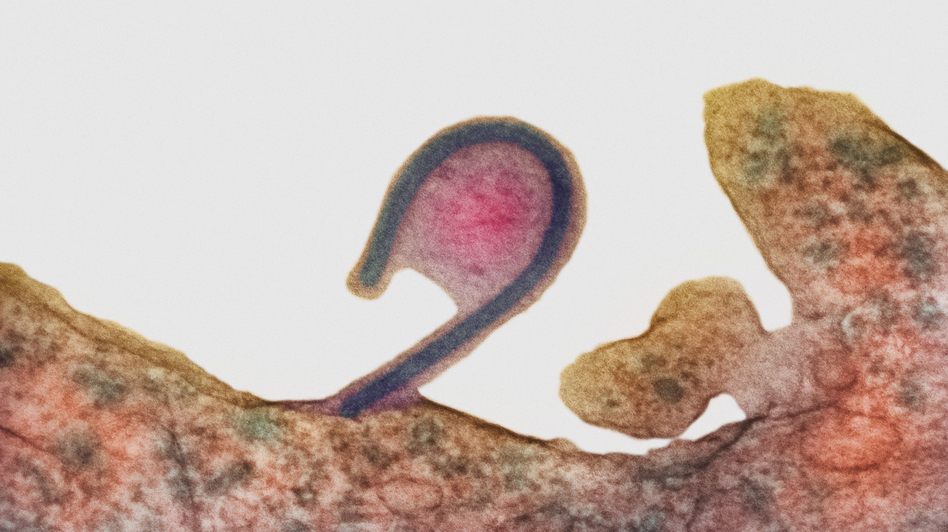 In this colored transmission electron micrograph, an infected cell (reddish brown) releases a single Ebola virus (the blue hook). As it exits, the virus takes along part of the host cell's membrane (pink, center), too. That deters the host's immune defenses from recognizing the virus as foreign. (Science Source)