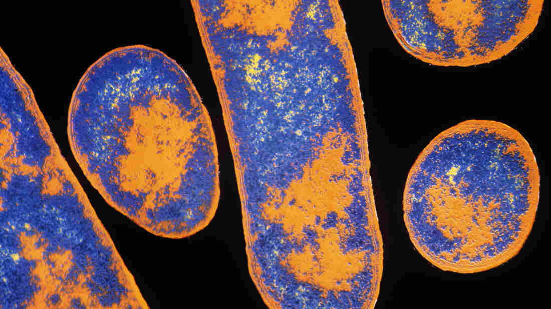 Botulism bacteria, or Clostridium botulinum, grow in poorly preserved canned foods, especially meat and fish. The microbe's toxin could be lethal as a bioweapon.