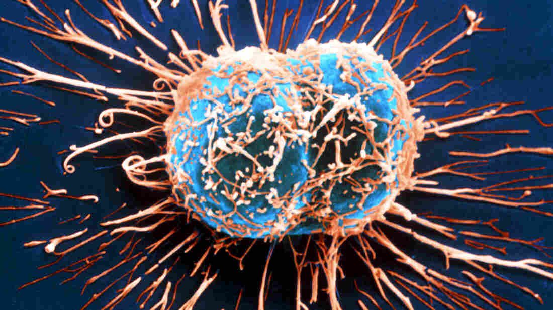 Two cervical cancer cells divide in this image from a scanning electron microscope.