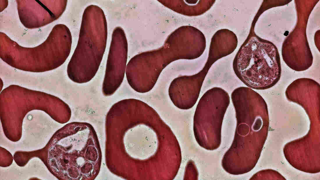 Red blood cells infected with the Plasmodium falciparum parasite. Plasmodium is the parasite that triggers malaria in people.