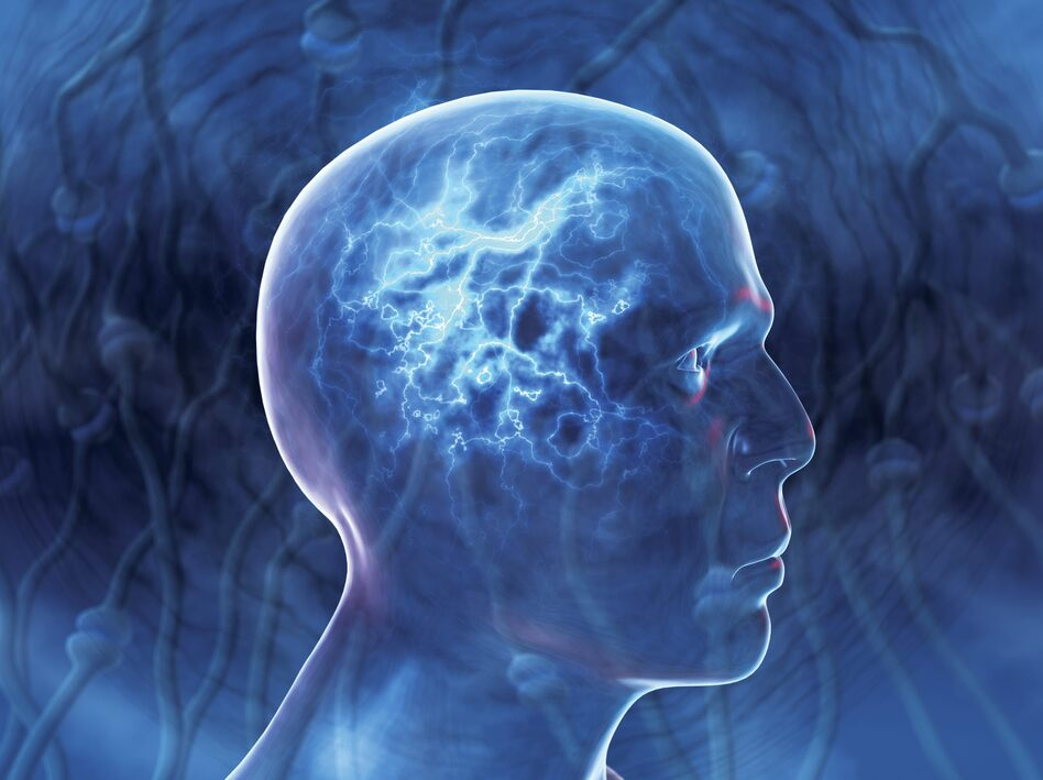 the idea of epilepsy as a brain disorder