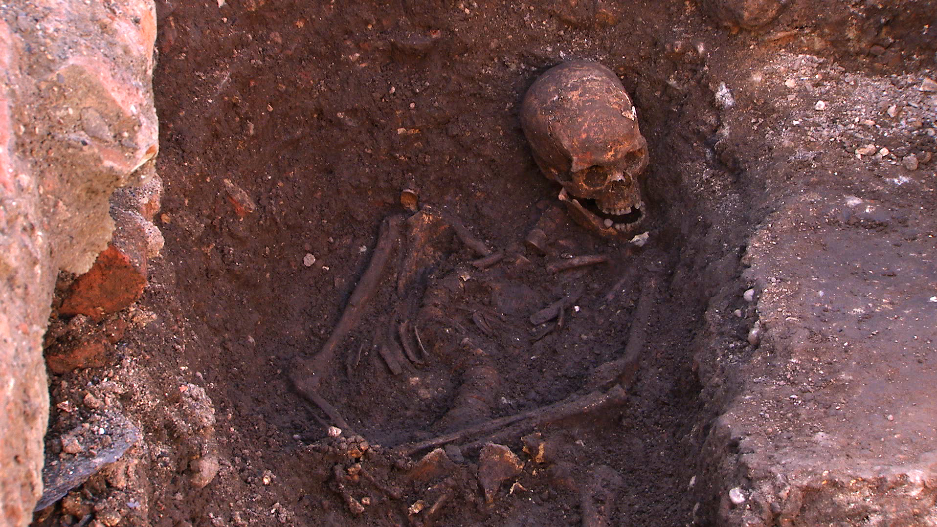 No Hunch Here: Richard III Suffered From Scoliosis Instead