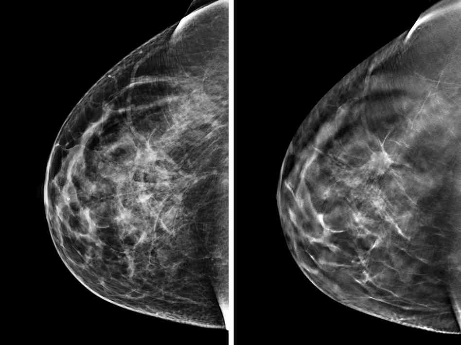 what is digital mammography with tomosynthesis